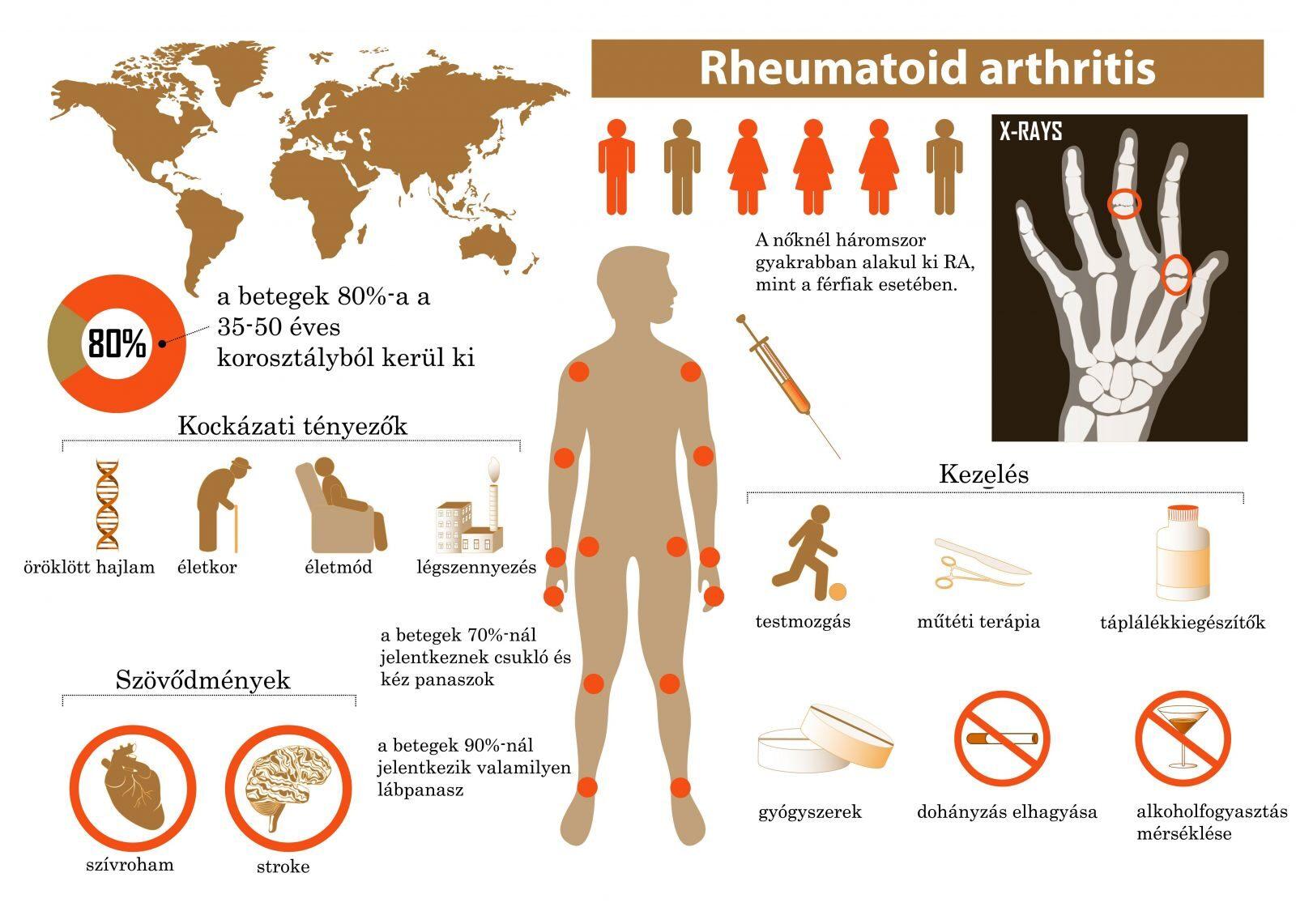 csípőízület kezelésében reumatoid artrosis