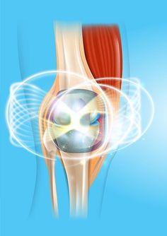 térdfájdalom edzés közben - Az artrózis és ízületi gyulladás természetes kezelése
