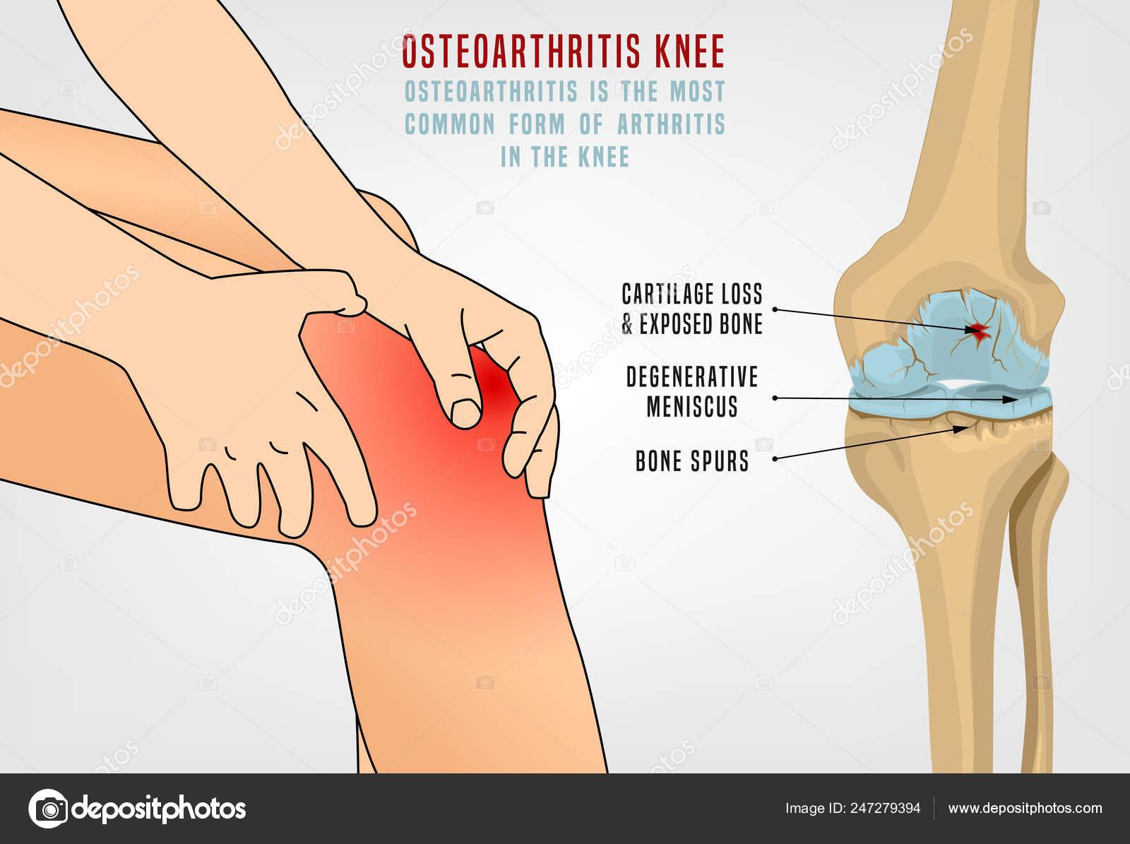 térd osteoarthrosis prognózisának kezelése 3 fokkal