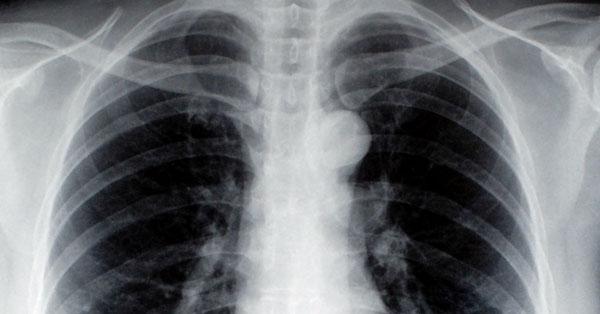 Vállfájdalom: a tüdőrák első tünete?
