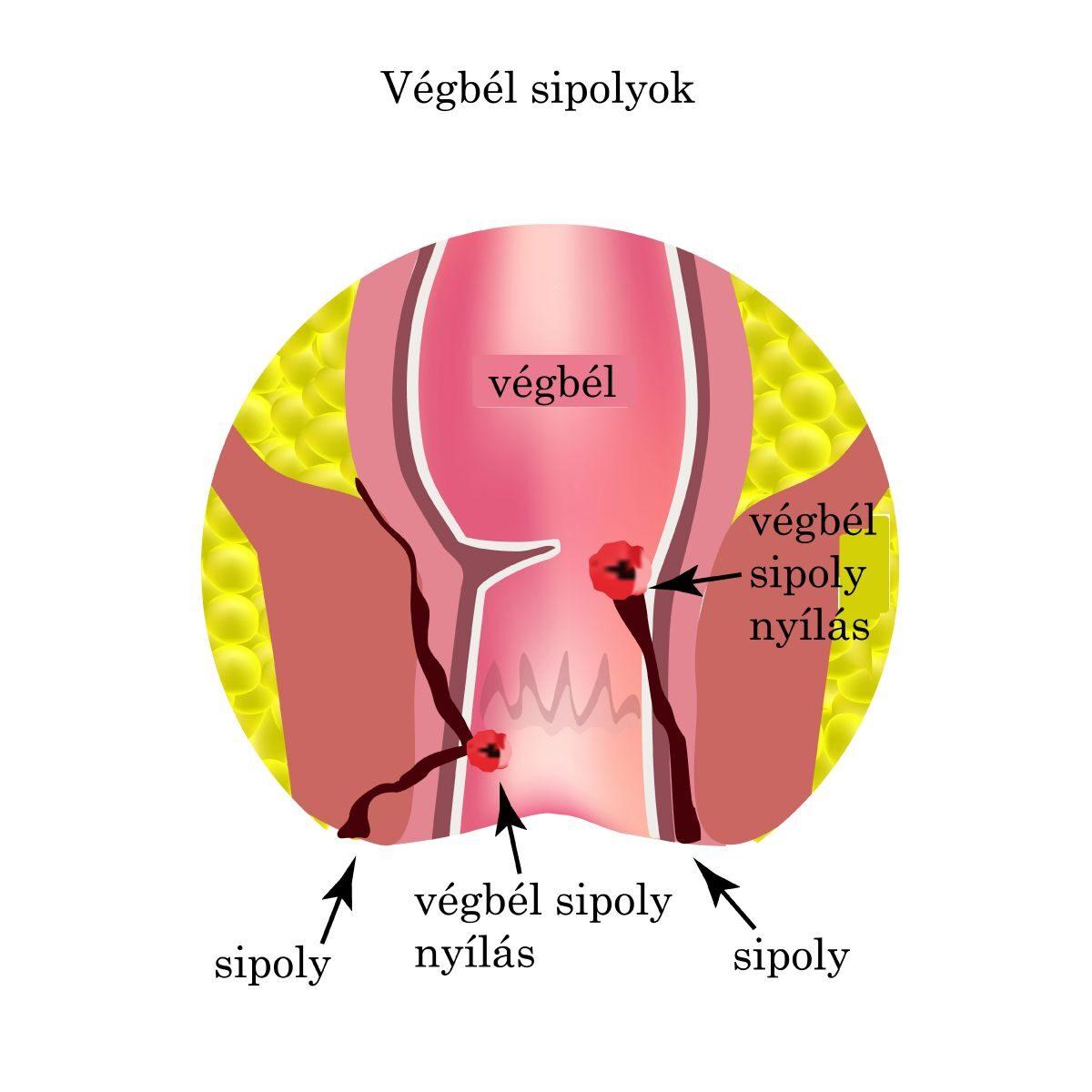 A fekélyes vastagbélgyulladás (colitis ulcerosa)