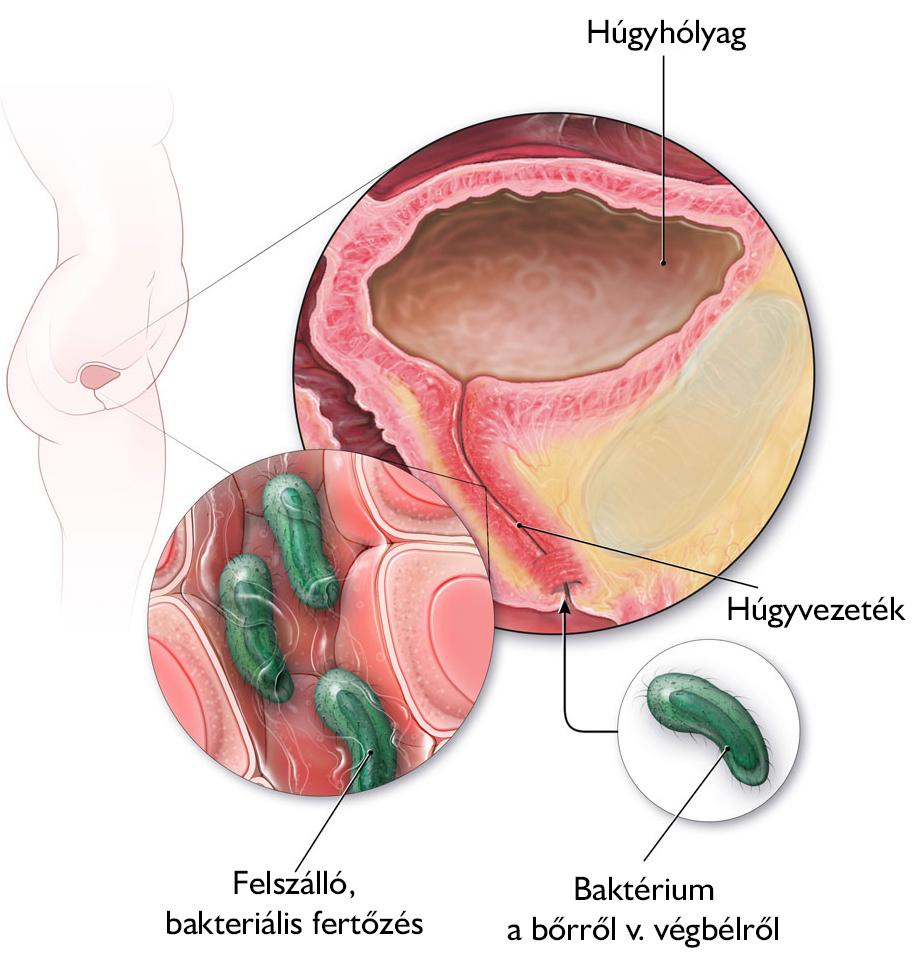A vesegyulladás fajtái és tünetei - Medicover Magánkórház