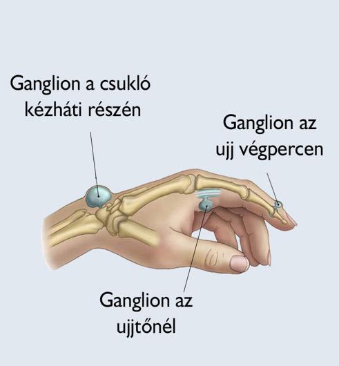 Aneszteziológia