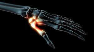 a kéz kis ízületeinek deformáló artrózisa