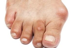 ízületi fájdalom a lábujjon)