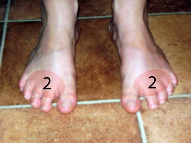 a nagy lábujj ízületi gyulladásának kezelése)