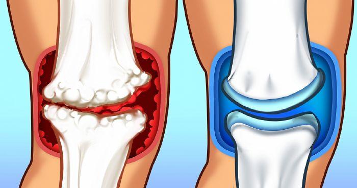 térdkalács alatti fájdalom